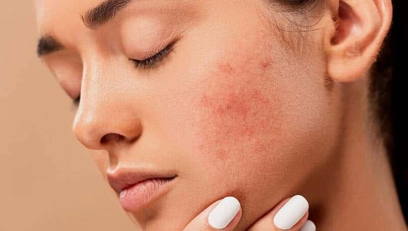 Huile essentielle ravintsara pour soigner les boutons acné 3